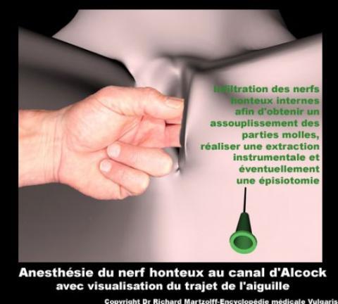 Image Photo Anesth 233 Sie Du Nerf Honteux Au Canal D Alcock