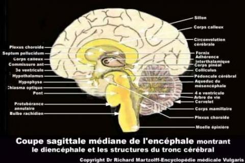 Image photo cerveau coupe sagittale m diane neurologie vulgaris m dical - Coup de soleil definition ...