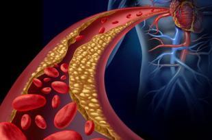 Hypercholestérolémie essentielle