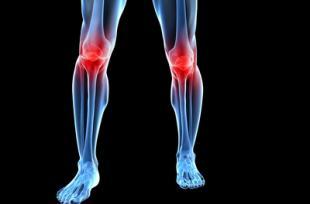 La vitamine D pour soulager l'arthrose