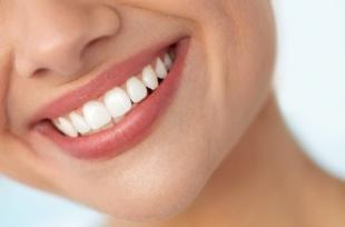 5 habitudes qui abîment les dents