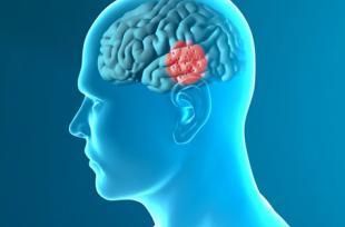 Parkinson : la vitamine D ralentit la maladie