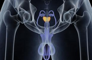 Cancer de la prostate : impact du traitement hormonal sur le cerveau