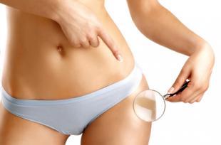 BEAUTE ET SOINS NATURELS - 5 méthodes simples et naturelles pour lutter contre la cellulite