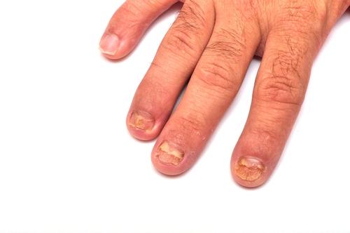 candida parapsilosis ongle